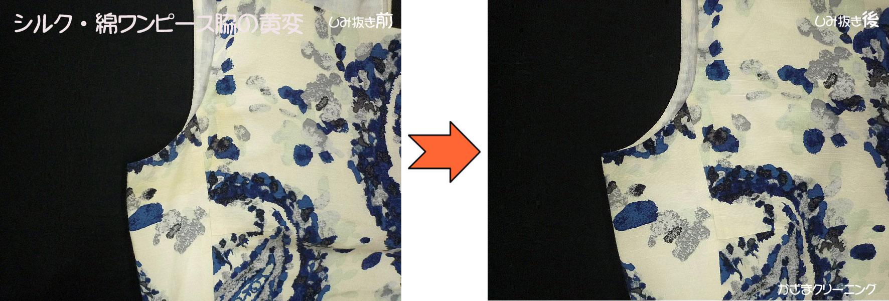 シルク・綿ワンピース(トゥモローランド)の脇黄変しみ抜き