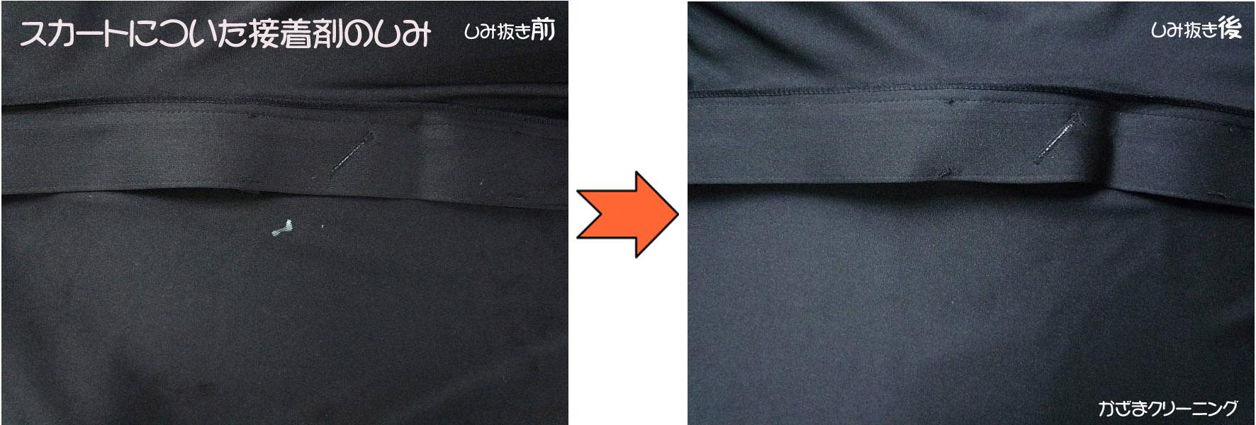 スカートについた瞬間接着剤の染み抜き