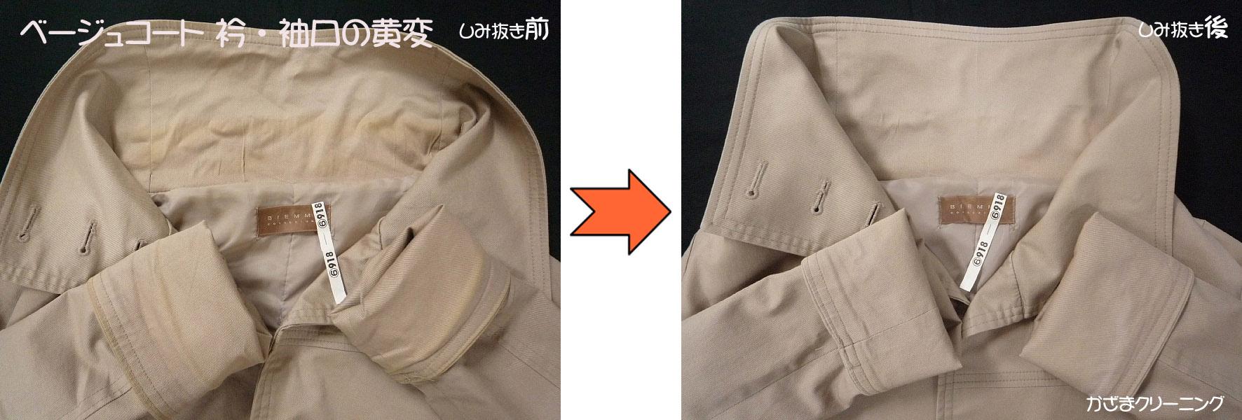 ベージュコート衿・袖口黄変の染み抜きと色修正