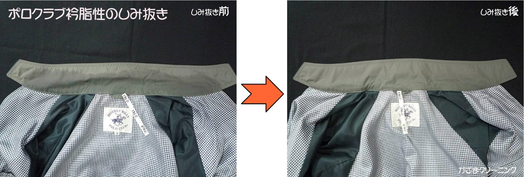 ポロクラブジャンバー衿脂性のしみ抜き