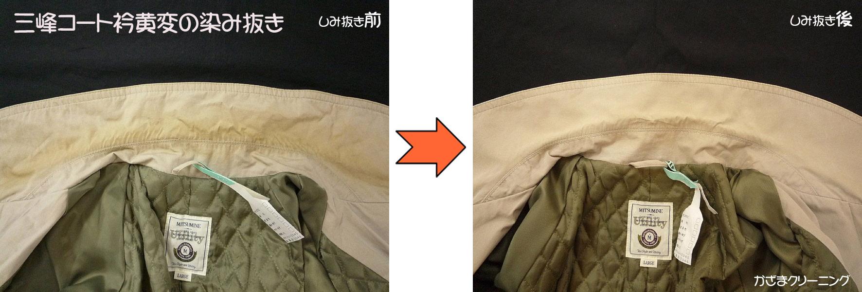 三峰コート衿黄変の染み抜き