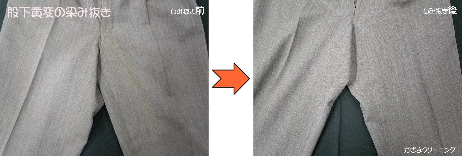 股下黄変の染み抜き withスマップ