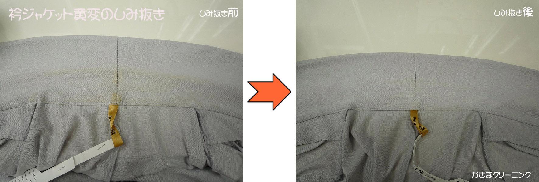 衿ジャケット黄変の染み抜き